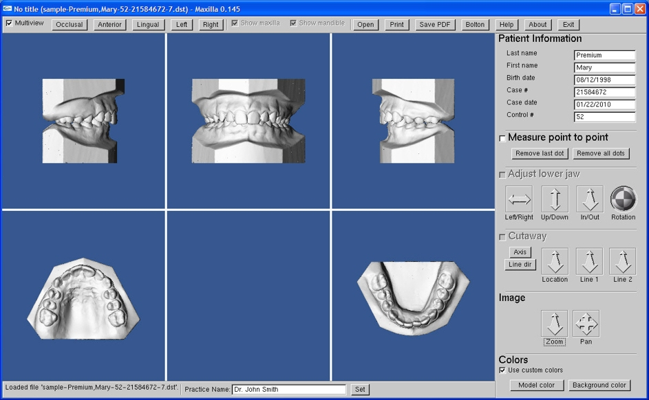 Ortho Cast Inc Orthodontic Study Models Dental Digital